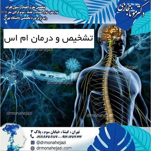 تشخیص و درمان ام اس
