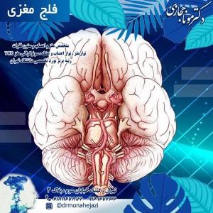 فلج مغزی