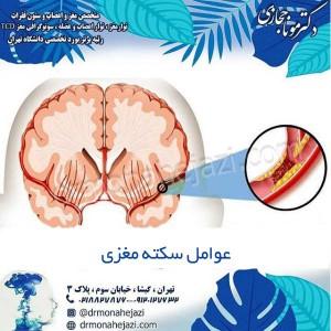عوامل سکته مغزی