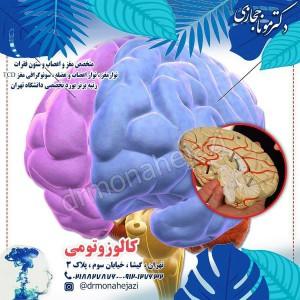 کالوزوتومی