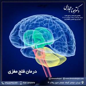 درمان فلج مغزی