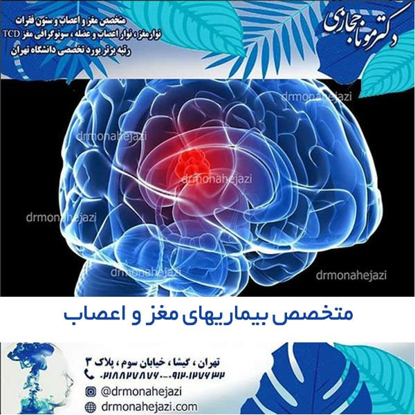 متخصص بیماریهای مغز و اعصاب